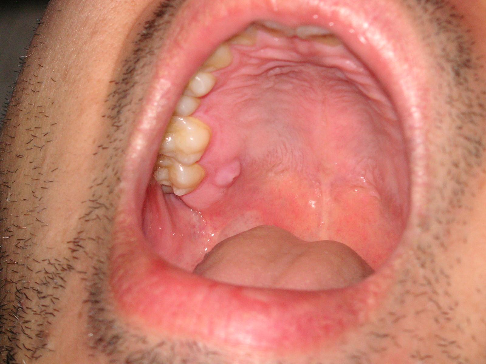 もの でき うわ あご こんな症状が実は病気のサイン?:口腔内の異変と早期発見・治療の重要性|口腔がん検診・舌がん検診予約を歯科医院で