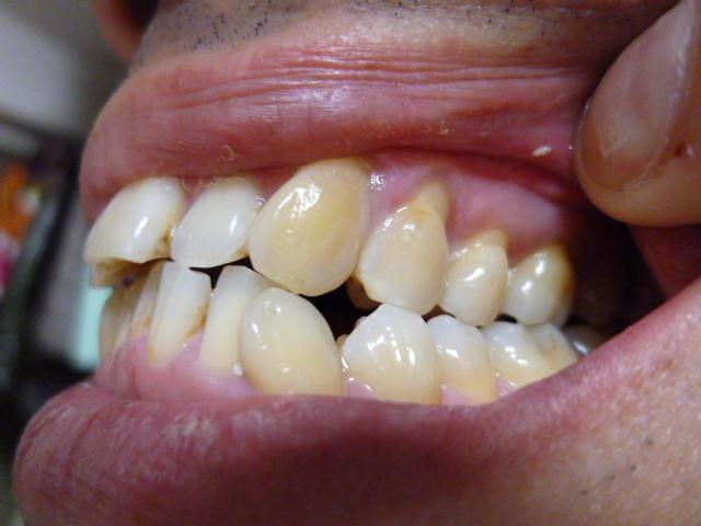 から 見える 歯茎 歯 が 写真でわかる!歯茎のできものの正体と治療法を歯科医師が徹底解説
