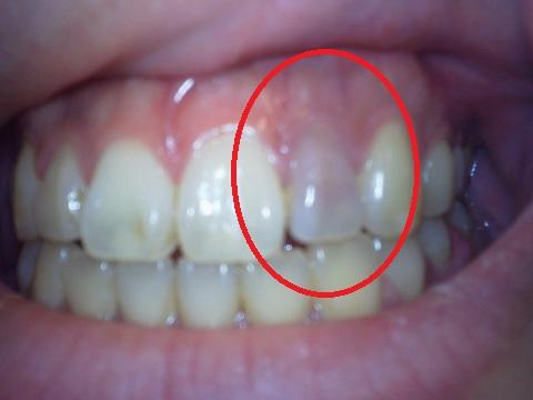歯茎 を 押す と 痛い