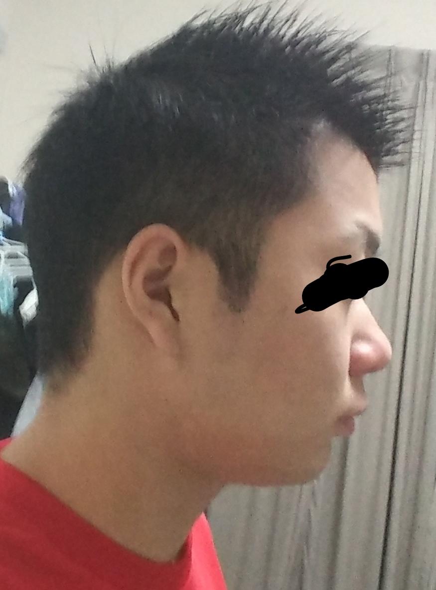 写真あり] アデノイド顔貌とは