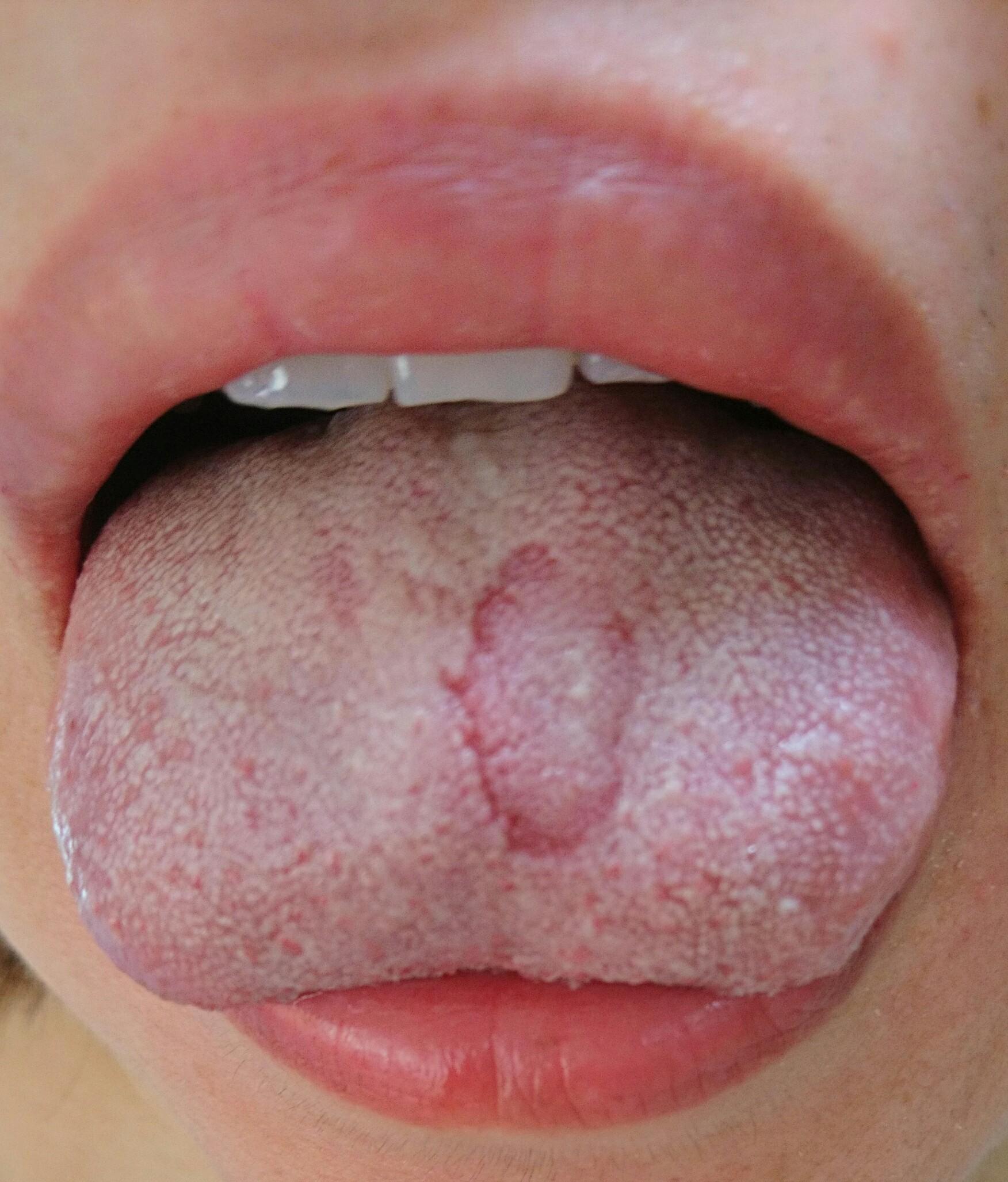 する ひりひり 舌 が