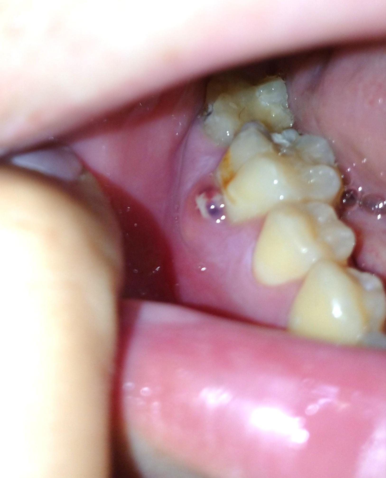 痛い 治療 後 歯 の